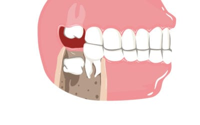 What Makes Wisdom Teeth Harder To Remove
