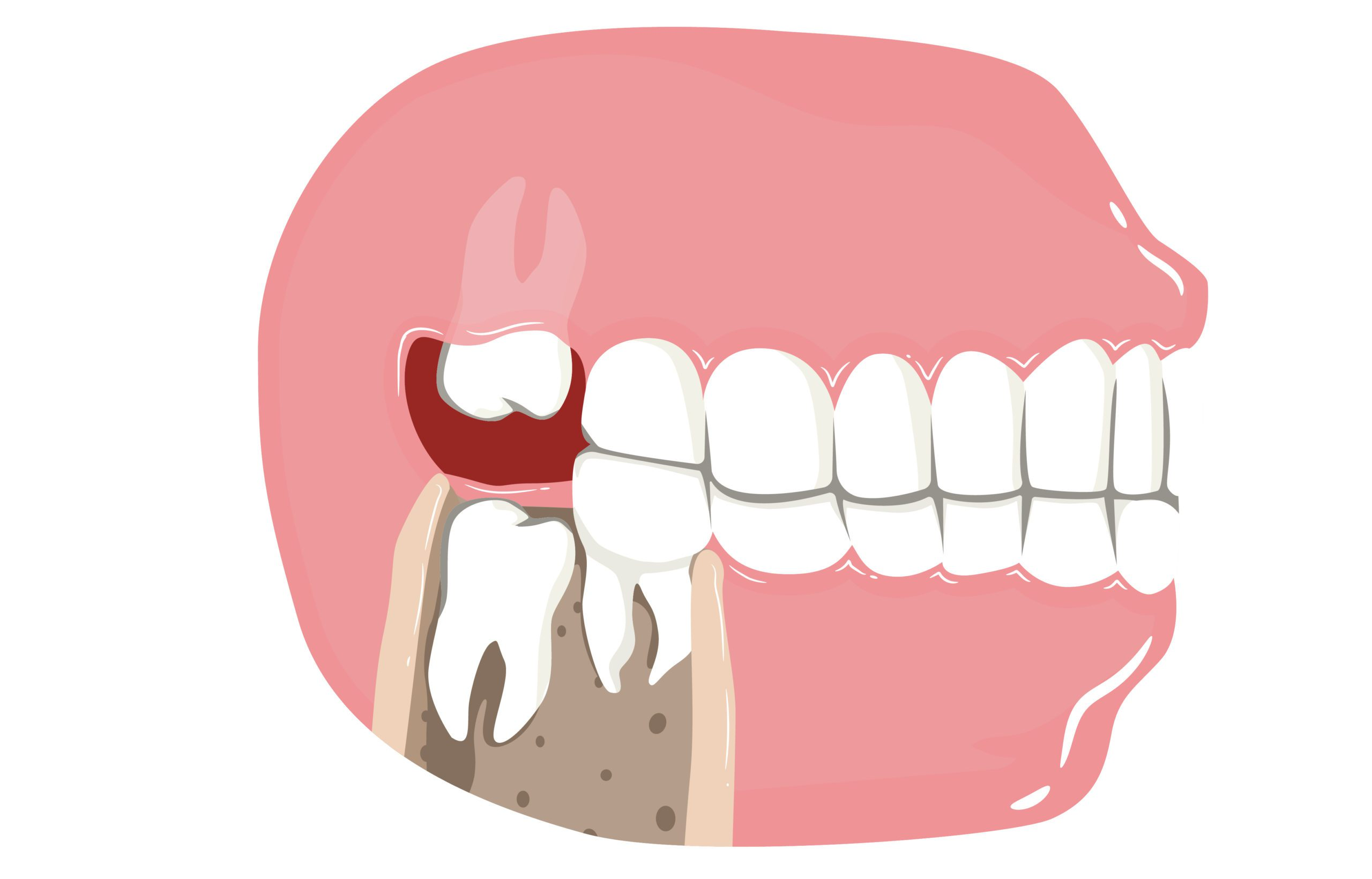 wisdom teeth removal in Houston