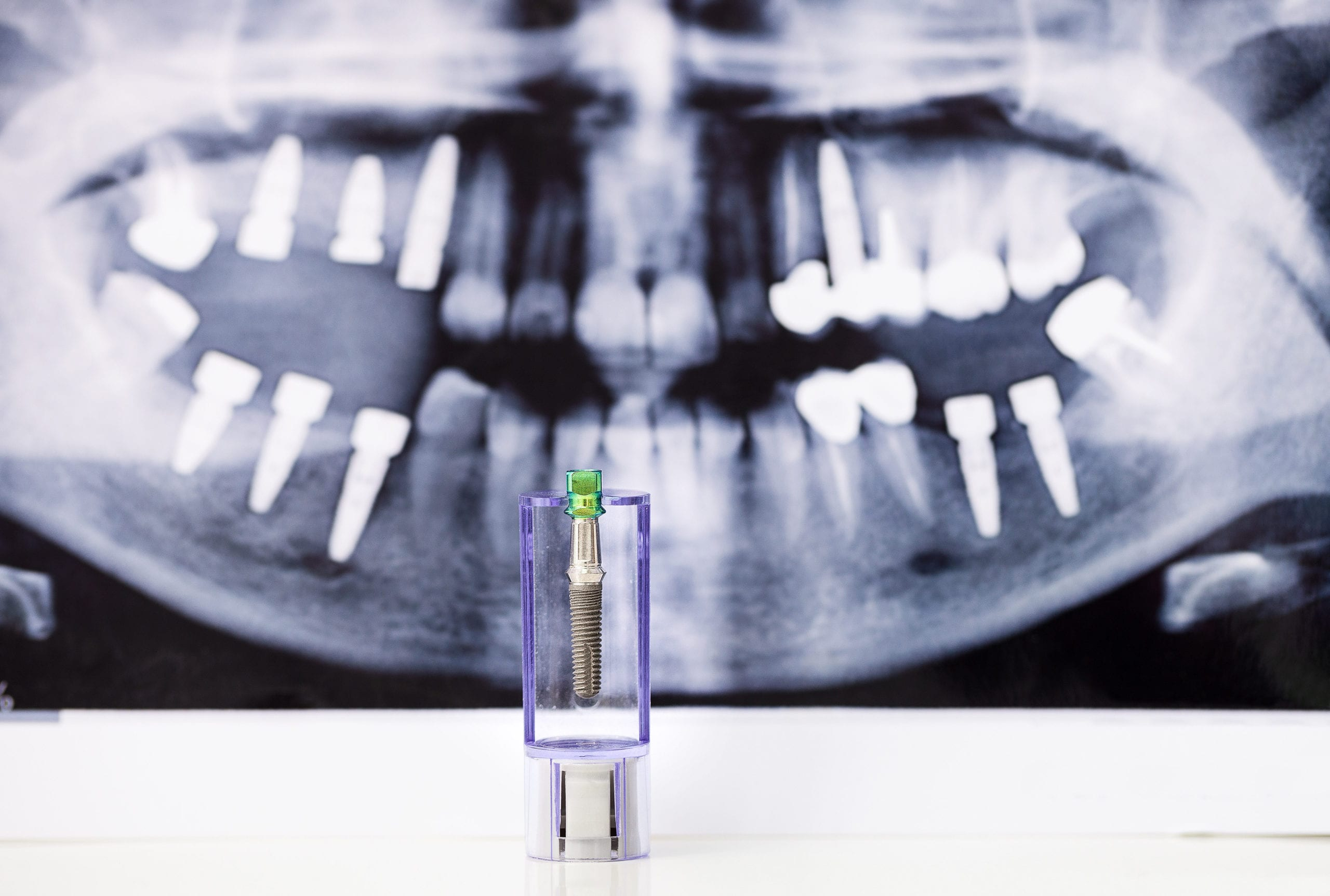 cost of dental implants in Houston