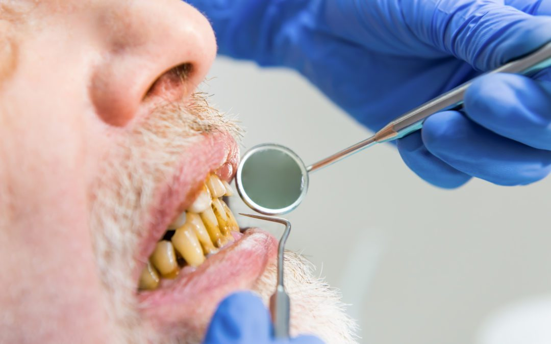 Bad Breath : Causes, symptoms and treatment