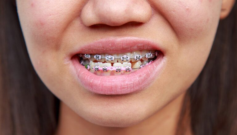 How much does invisalign teen cost